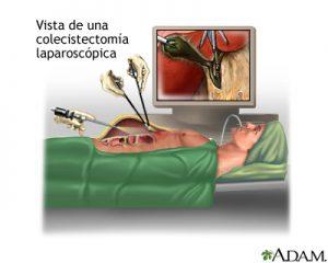 laparscopia3